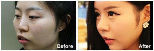 /upload/old_kmh/special_photo/public/1_Korean%20Celebrity%20Total%20Face-Line%20Surgery.jpg