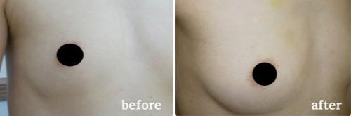 /upload/old_kmh/special_photo/public/Needle%20Embedding%20Breast%20Augmentation%20Therapy.jpg
